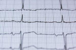 Hart ritme variatie